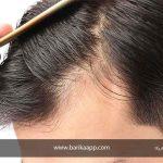 درمان تغذیه ای ریزش مو